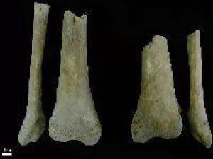 Esqueletos encontrados em Estremoz com pés e mãos amputados, são o primeiro caso no mundo