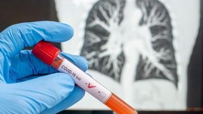 Uma mulher muito jovem é o primeiro caso de  COVID-19. confirmado em Portalegre