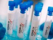 COVID-19/Dados DGS: Portugal regista mais 112 infetados e um óbito