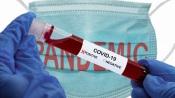 Covid 19/DGS: Portugal com mais 5 mortes e 313 novos casos