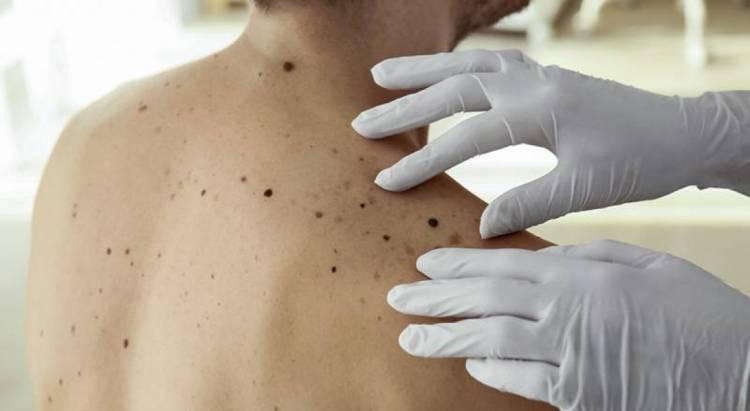 Liga Portuguesa realiza Rastreio do Cancro da Pele em Borba